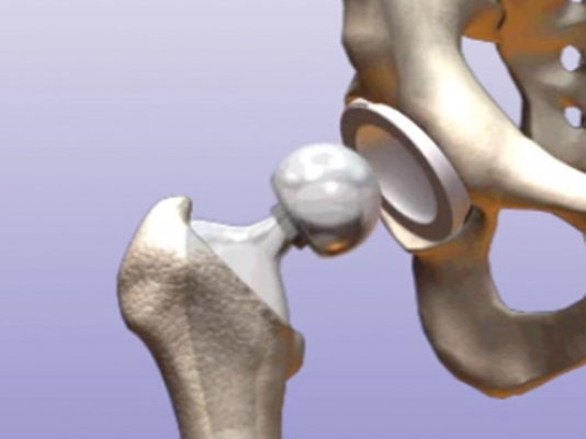 global-artificial-hip-joint-market